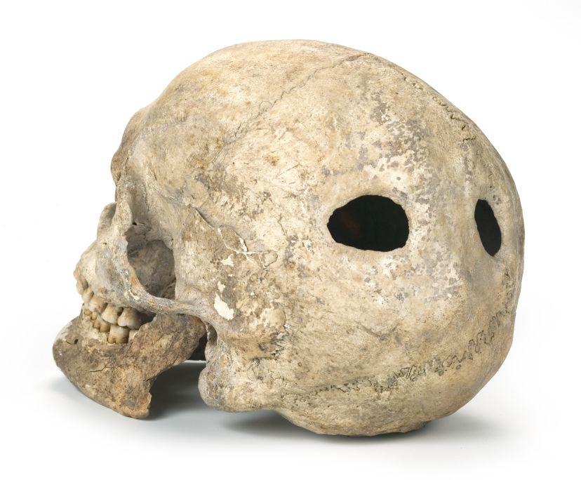 Crâne trépané, époque néolithique (5600-5400av. J.-C.). Site archéologique: Mines préhistoriques de Gavà (Gavà)