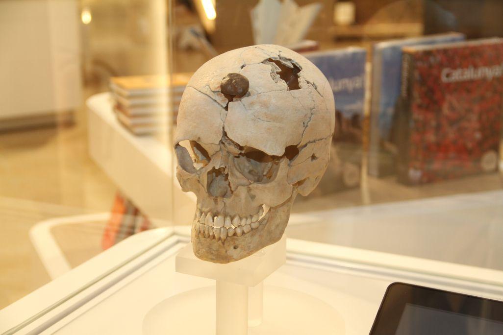 Crani enclavat seguint el ritual iber dels caps tallats