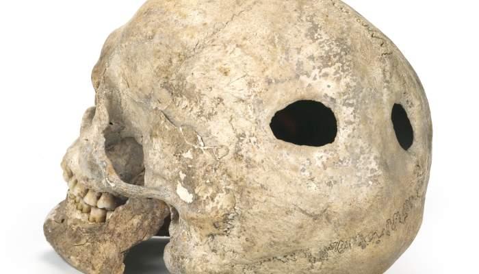 <p>Trepanned skull, Neolithic period (5600-5400BC). Site: Prehistoric Mines of Gavà (Gavà)</p>