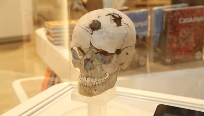 <p>Crani enclavat seguint el ritual iber dels caps tallats</p>